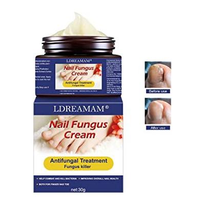 Tratamientos para uñas,Crema de uñas para pies Crema